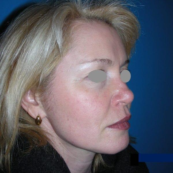 1 mois après injection de Vistabel sur le haut du visage