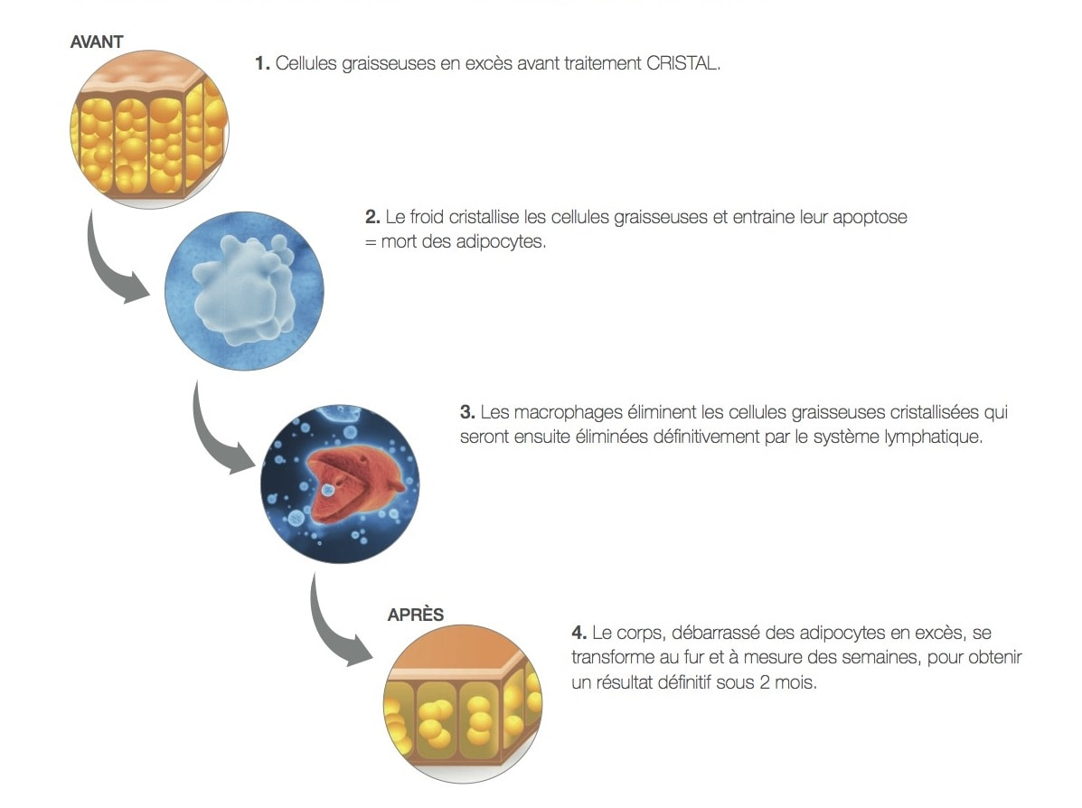 cryolipolyse annecy geneve graisse froid