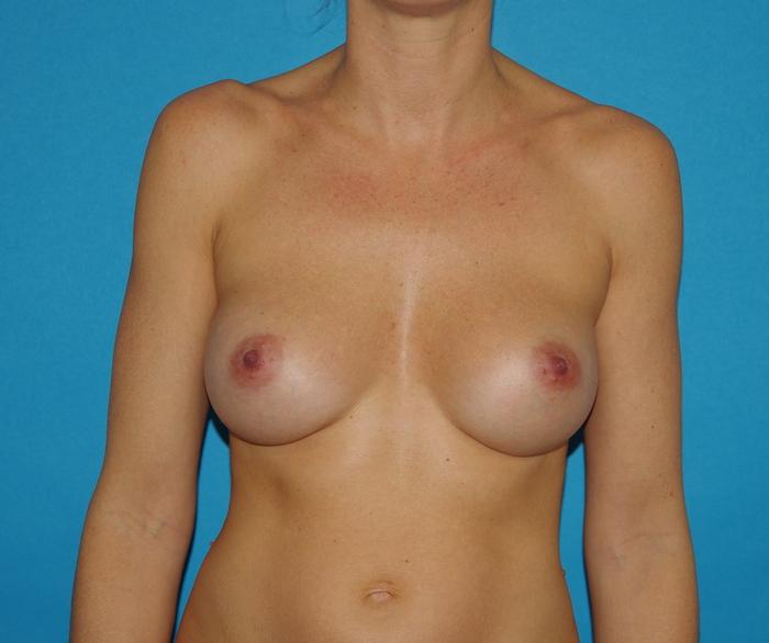1 an après augmentation mammaire