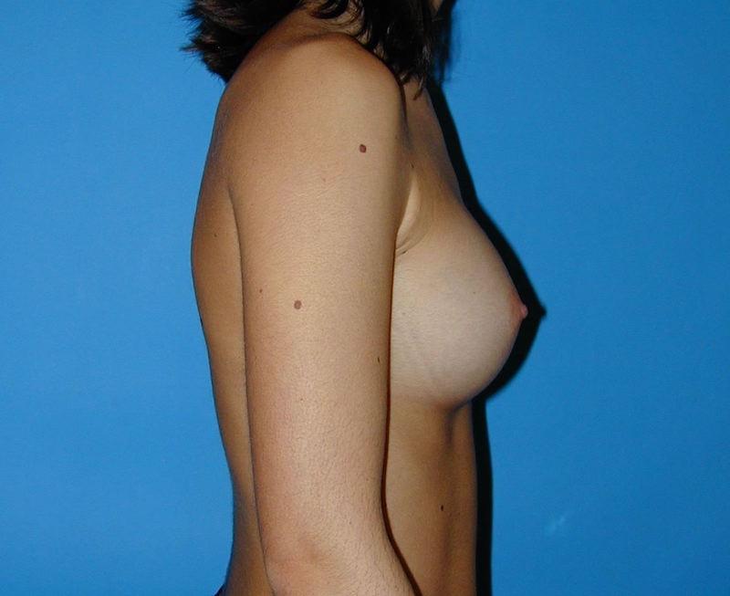 8 mois après augmentation mammaire