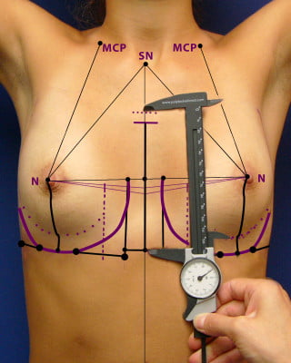 dessins pre operatoires augmentation mammaire protheses seins
