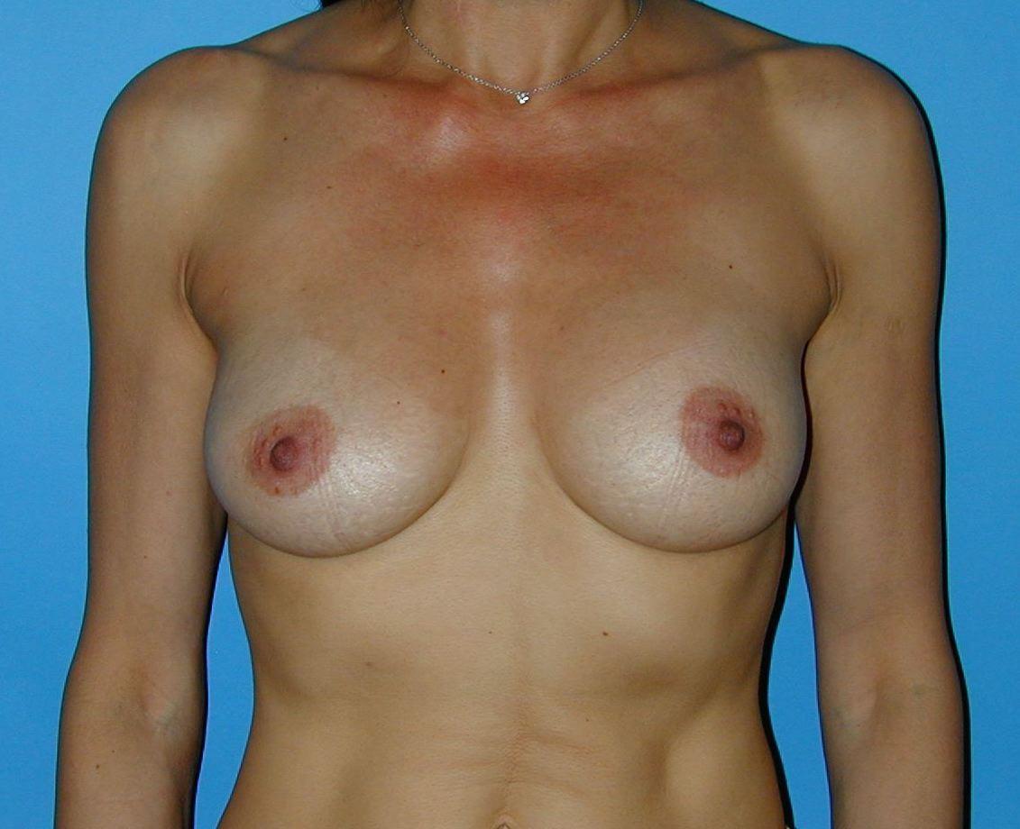 Remplacement par des implants en gel de silicone