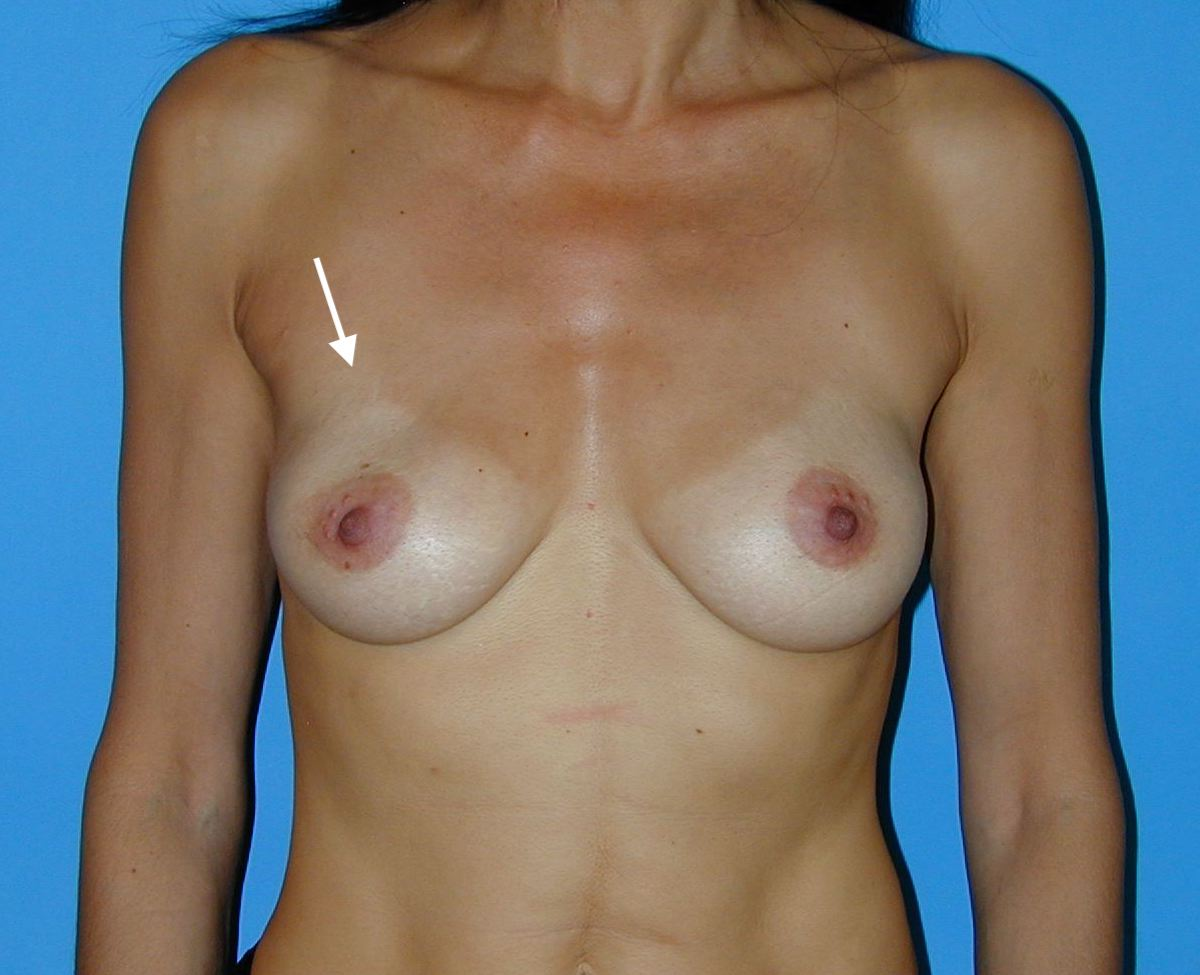Implants en sérum physiologique avec vagues