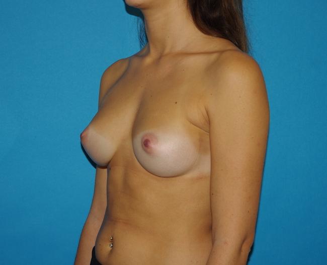 18 mois après augmentation mammaire