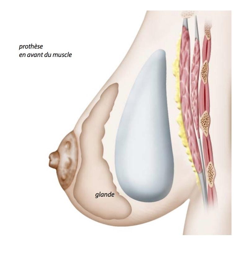 implant-prothese-augmentation-mammaire-pre-pectoral-avant-muscle-retro-glandulaire-arriere-derriere-glande-seins-poitrine
