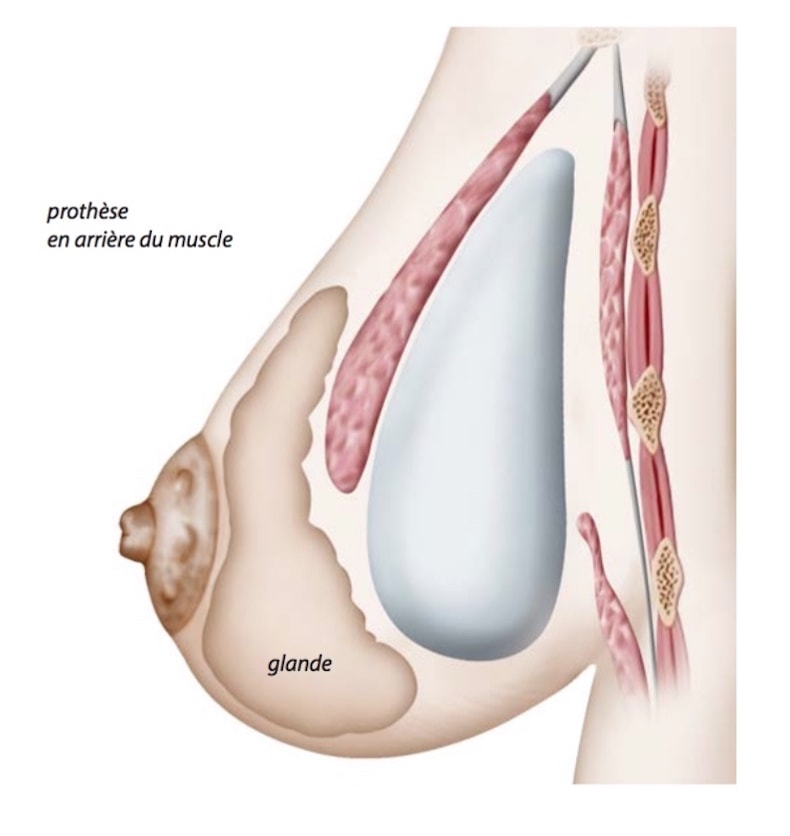 implant-prothese-mammaire-retro-pectoral-arriere-muscle-augmentation-seins-poitrine