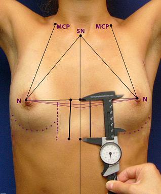 mesures poitrine thorax augmentation mammaire protheses seins