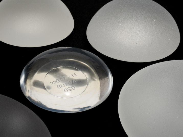 Le retour des implants mammaires ronds