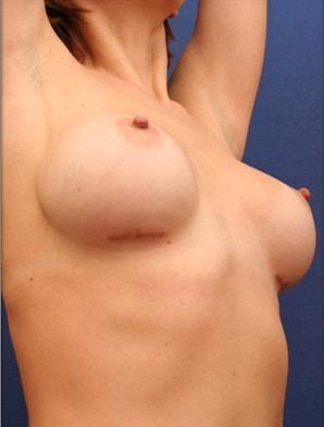 cicatrice sein sous mammaire anormale hypertrophique implants mammaires augmentation