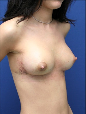 hematome saignement prothese sein complication