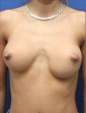 malposition prothese mammaire