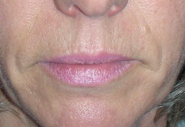 Avant remodelage des lèvres