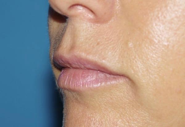 Après remodelage des lèvres par acide hyaluronique