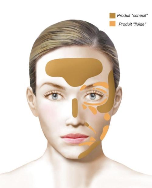 injections annecy acide hyaluronique comblement rides visage sofcpre