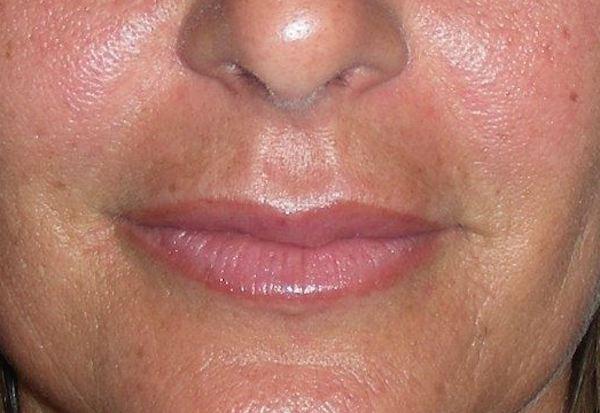 Après comblement par acide hyaluronique des sillons et des lèvres