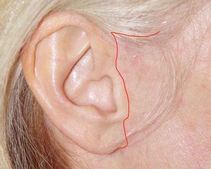 Trajet de la cicatrice le long de l'oreille