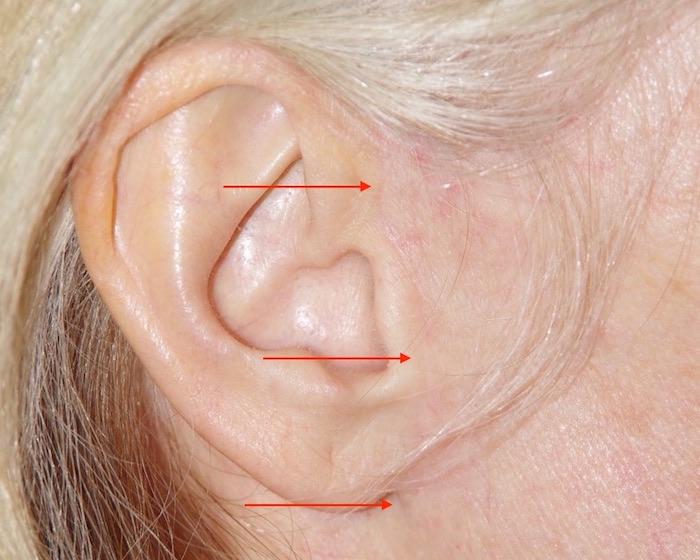 Aspect de la cicatrice plusieurs mois après l'intervention