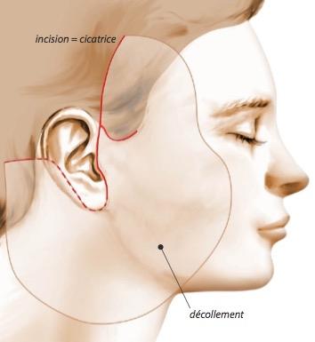 incision décollement lifting cervico-facial Chirurgie esthétique bas du visage et cou
