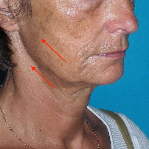 Objectif du lifting cervico-facial