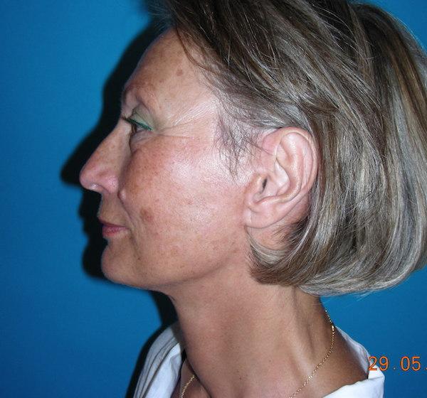 4 mois après lifting cervico-facial et blépharoplastie