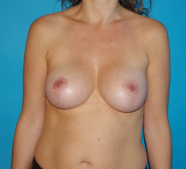 1 an après lifting des seins à cicatrices en ancres et augmentation mammaire par implants ronds 210 cc profil modéré