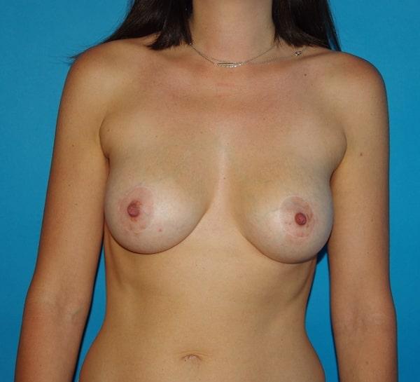 1 an après augmentation mammaire par implants ronds 210 cc et élévation des aréoles par round block