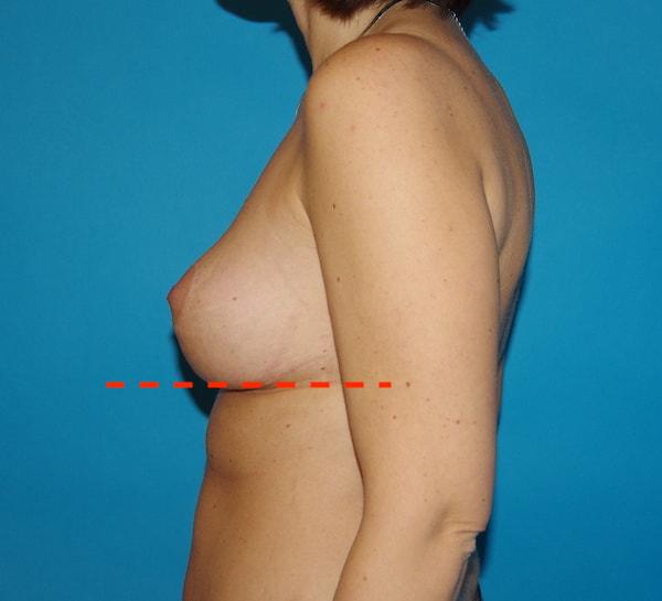 Après cure de ptose - lifting des seins