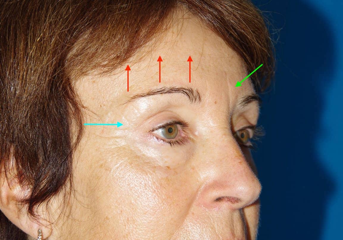 Après lifting fronto-temporal et blépharoplastie supérieure