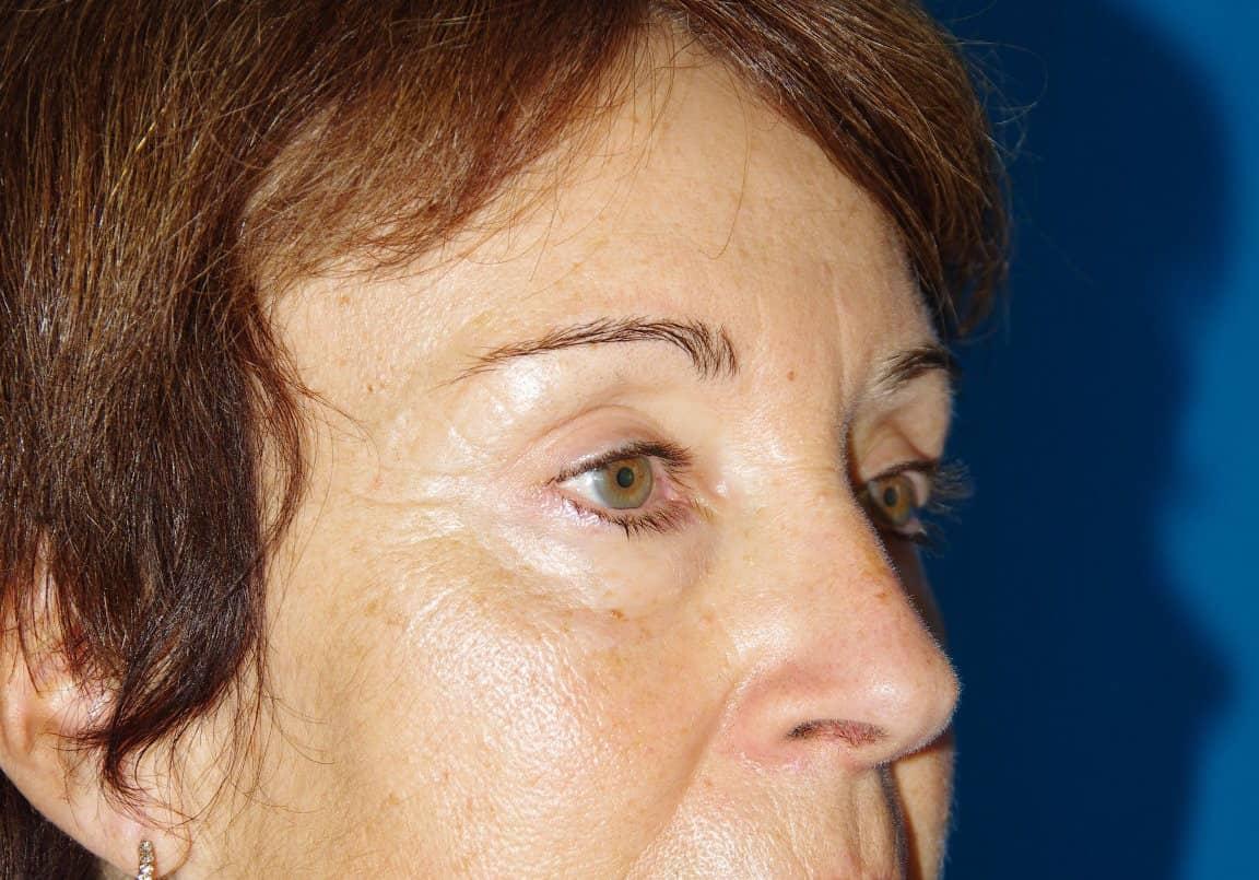 6 mois après lifting fronto-temporal et blépharoplastie supérieure