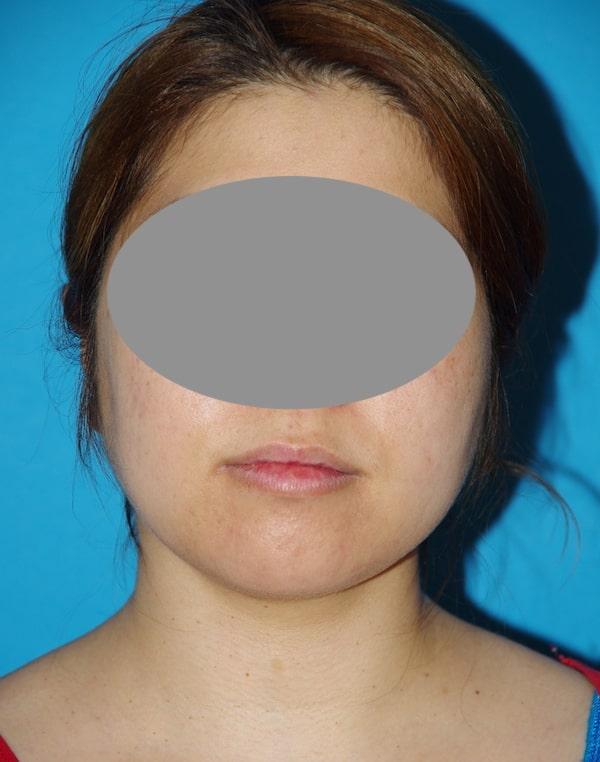 6 semaines après lipoaspiration du cou