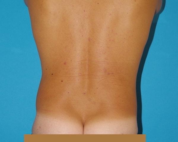 3 mois après lipoaspiration des hanches