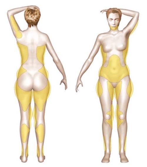 Zones surcharge graisseuse traitées par lipoaspiration annecy genève dr bottero