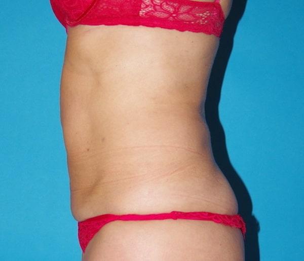 5 mois après lipoaspiration du ventre, de la taille, des hanches et du dos