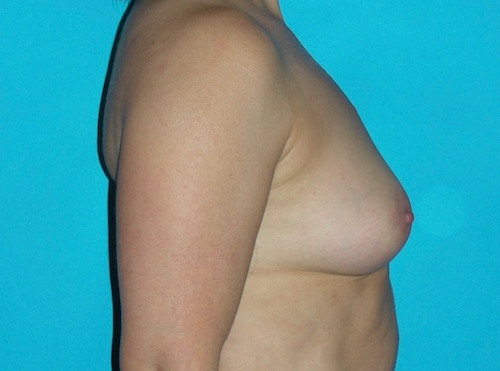 6 mois après lipomodelage des seins