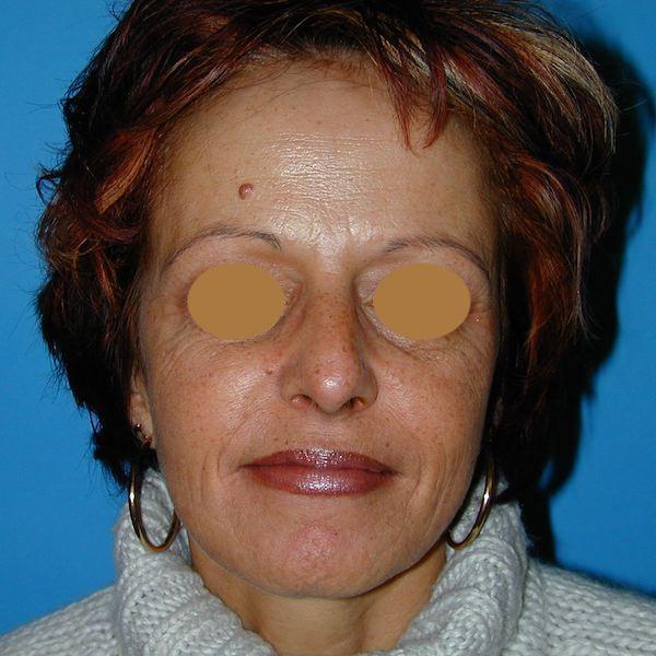 6 mois après lipostructure globale du visage