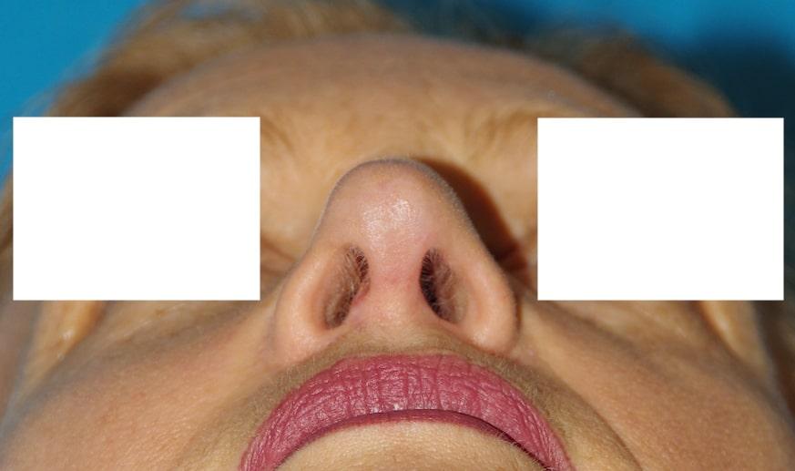 Correction de la déviation après septo-rhinoplastie