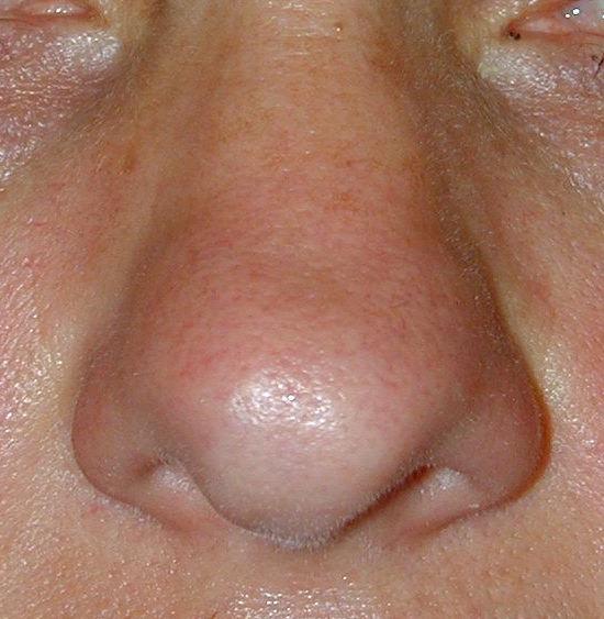 Pointe Nez Large Face
