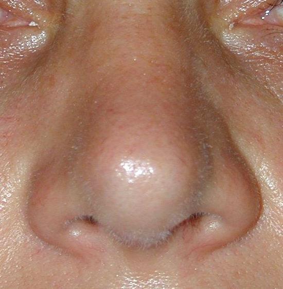 pointe du nez redressée après rhinoplastie avec greffe cartilage
