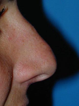 pointe du nez tombante avant rhinoplastie
