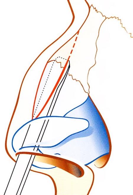 bosse nez rhinoplastie chirurgie