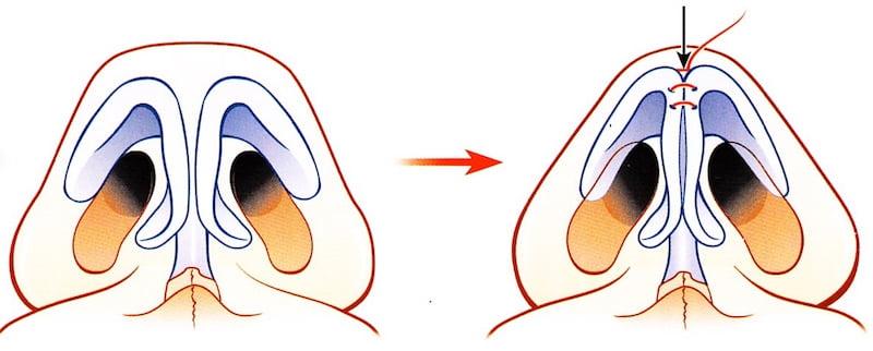 affinement pointe nez trop large rhinoplastie suture cartilage