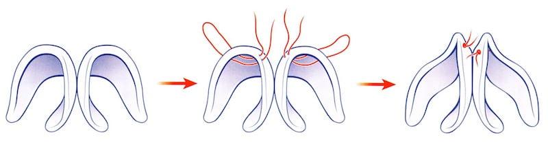 affinement pointe nez large suture cartilage