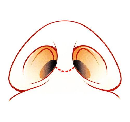 rhinoplastie voie ouverte externe incision cicatrice columelle
