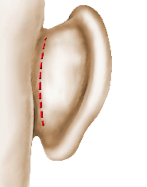 Cicatrice après correction des oreilles décollées