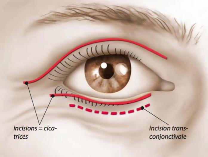 Cicatrices après chirurgie esthétique des paupières