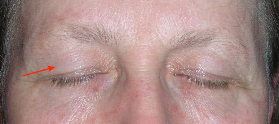 paupières supérieures tombantes excès de peau avant blépharoplastie