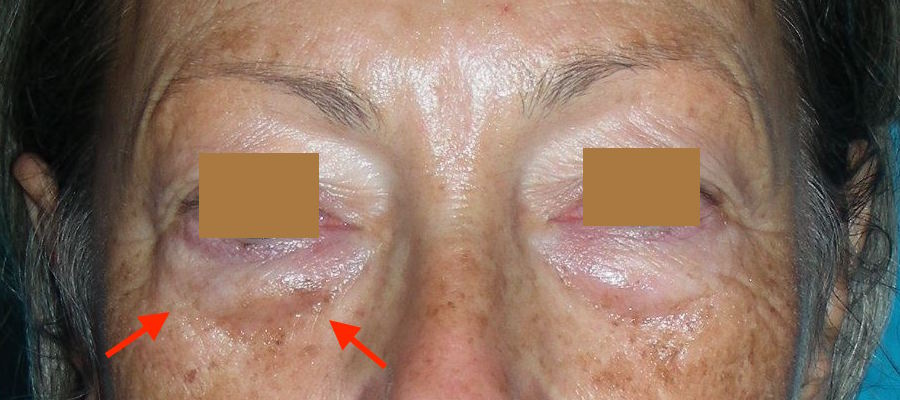 Poches sous les yeux - Gonflement des paupières inférieures