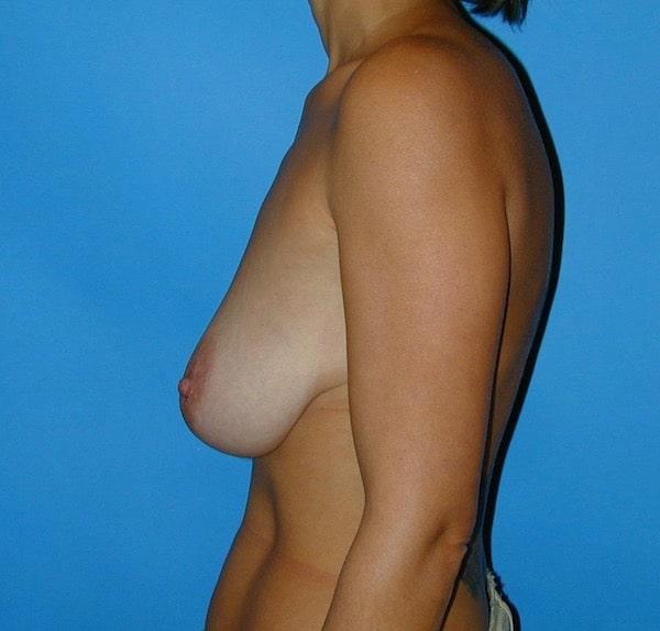 Hypertrophie mammaire modérée