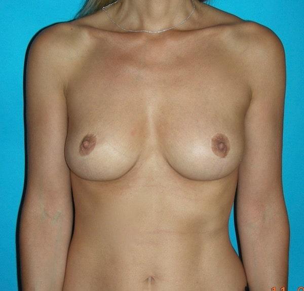 2 ans après lifting et réduction mammaire