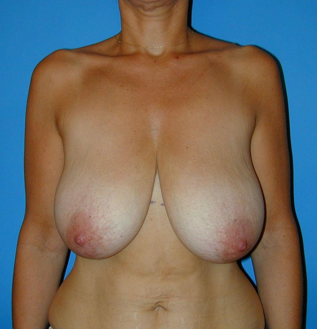 réduction hypertrophie mammaire seins trop gros tombants volumineux lourds genève annecy bottero